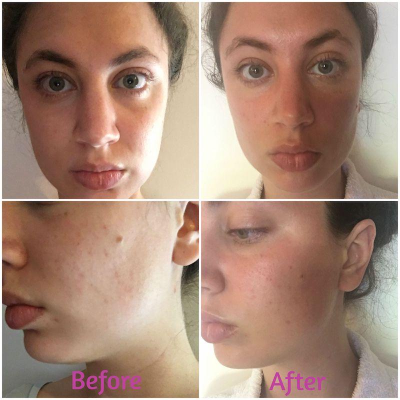 The Brunette Nomad_Proactiv_Skincare_5